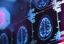 Банальность мышления можно лечить электричеством