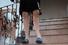 Удлинение ног
