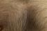 Пересадка волос на тело